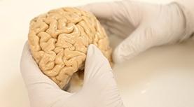 about-neurology-277x153px