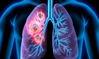 Initial presentation of lung cancer in the Emergency Department: a descriptive analysis