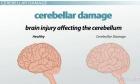 Supernumerary cerebellar vermis: a unique cerebellar anomaly