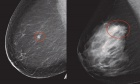 The association between breast density and HER2‑positive breast cancer: A population‑based case‑control study