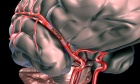 Optimal Transport Scenario for Access to Endovascular Therapy With Consideration of Patient Outcomes and Cost