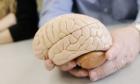 Nothing plain about the brain: Dal celebrates Brain Awareness Week